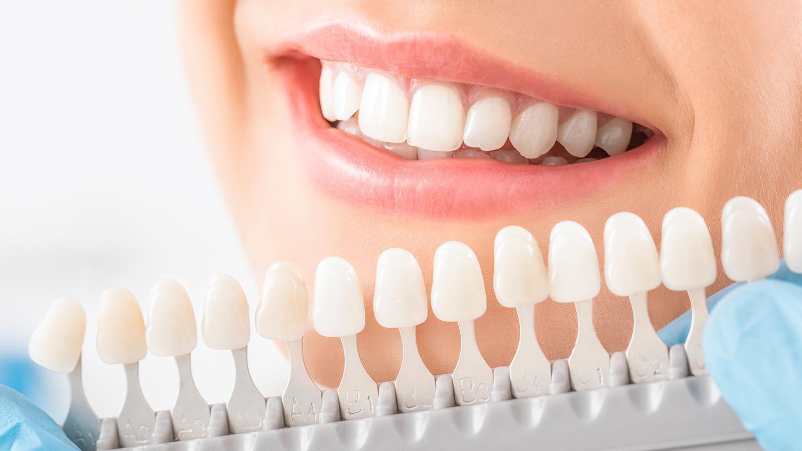 Esthetische tandheelkunde - Mijn tand tandarts hengelo