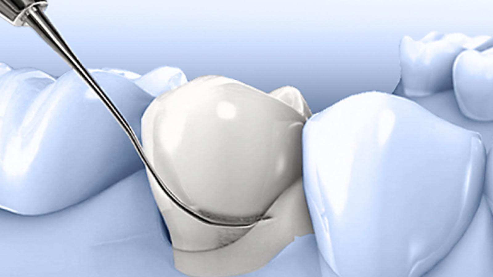 Paradontologie - mijn tand tandarts hengelo