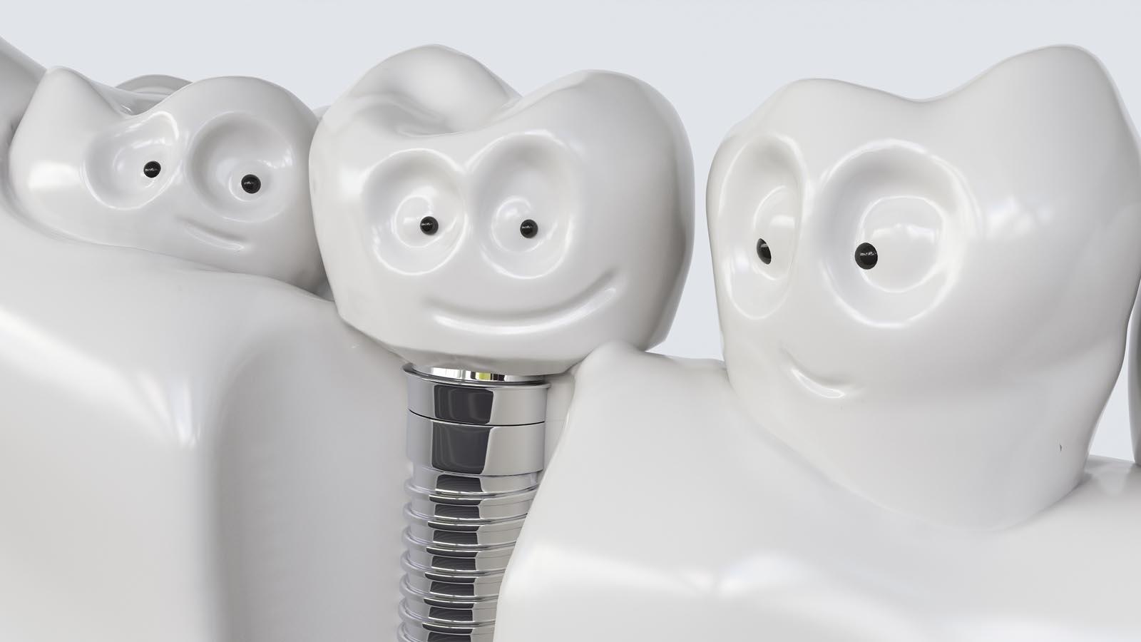 implantaten - mijn tand tandarts hengelo
