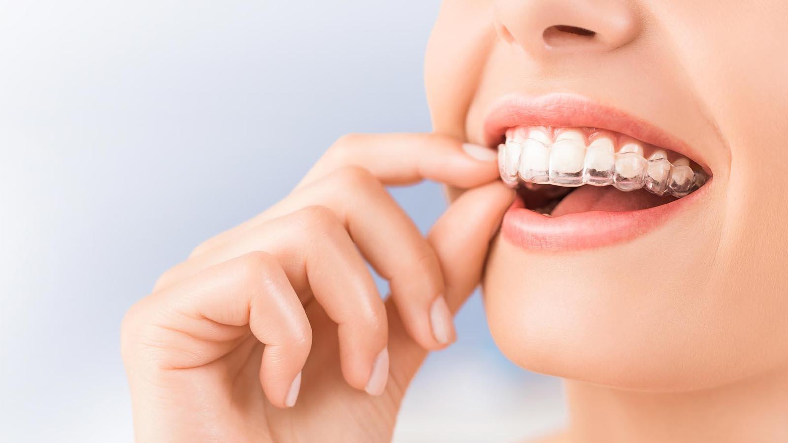 orthodontie - mijn tand tandarts hengelo