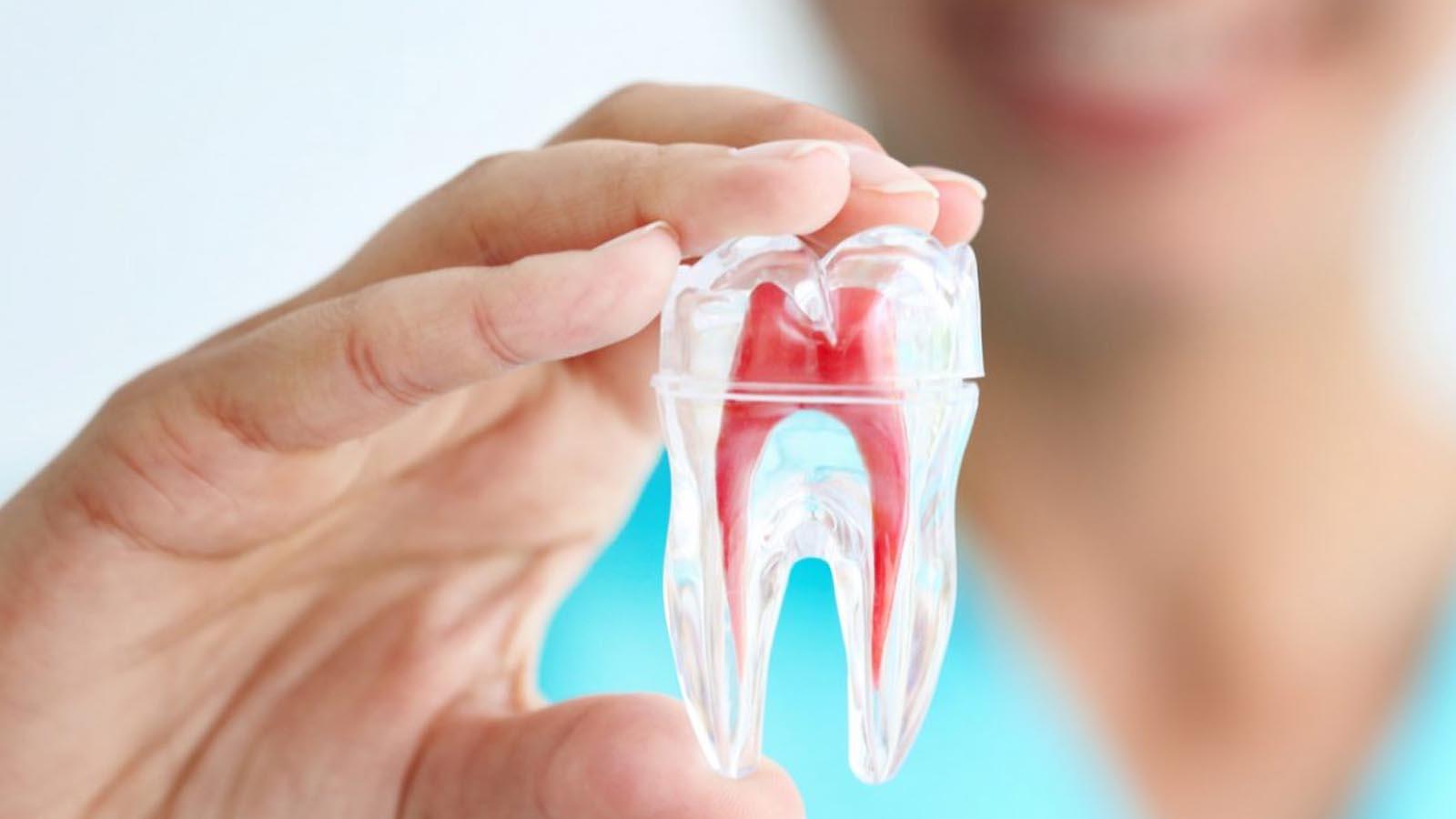 wortelkanaalbehandeling - Mijn tand tandarts hengelo